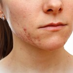 Fractional RF with Microneedling to treat acne and acne scars