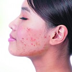 Acne in Asia and its impact on quality of life