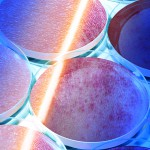 Keratinocyte transplantation—A new option for skin coverage after burns