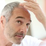 Medical hair restoration: Combatting the thinning crown of glory