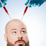 Autologous PRP injection in androgenic alopecia