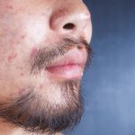 The treatment of acne scars