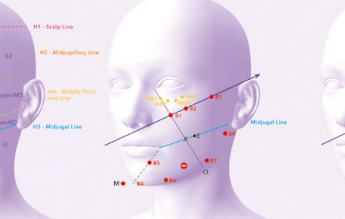 The STOP Facial Ageing Method™ a rigorous procedure for a flawless medical facelift