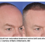 """Consumers say doctor reviews """"Extremely Important"""" for choosing plastic surgeons"""