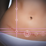 Trends in abdominoplasty