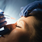 'Botox' improves appearance of facial scars in reconstructive surgery