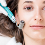 Cutera Announces Regulatory Approval of Secret™ RF Microneedling System in Canada