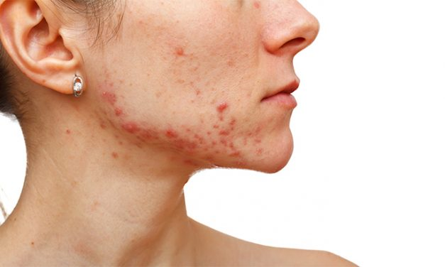 Exceed Microneedling device first to receive FDA clearance for the treatment of wrinkles and acne scarring