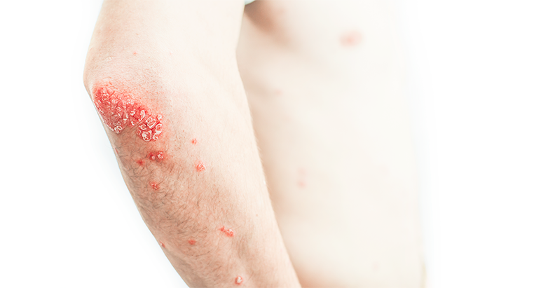 International Council Of Dermatologists Introduces New Method Of Determining Psoriasis Severity